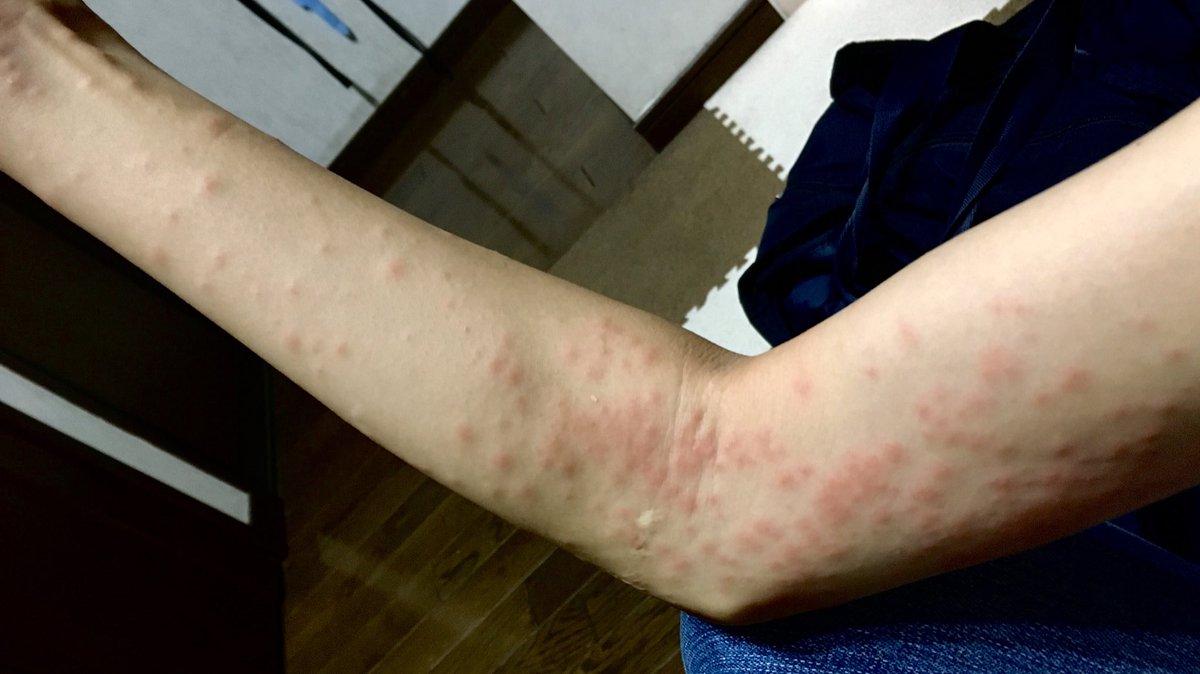 炎 うつる 皮膚 チャドクガ 【チャドクガに注意!】直接ふれなくても皮膚炎の原因になります