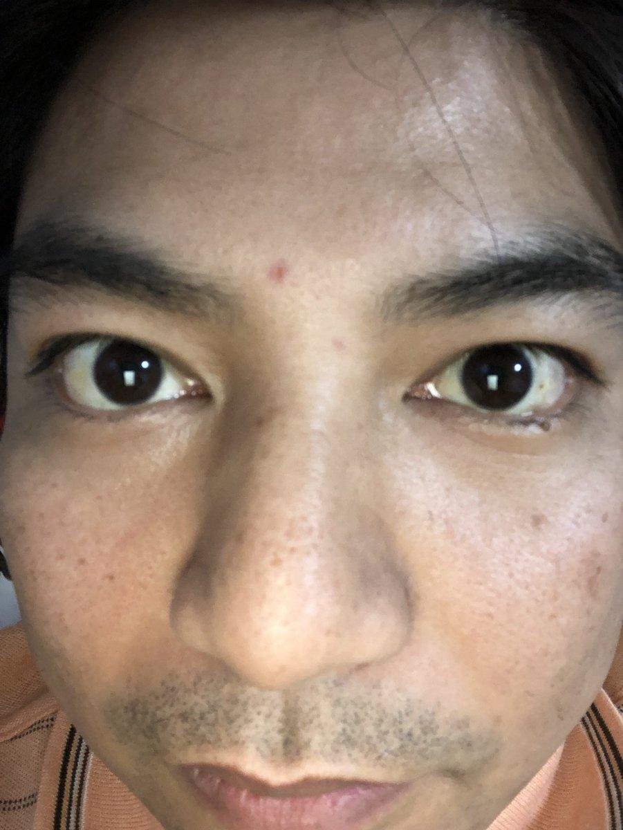 にきび 眉間