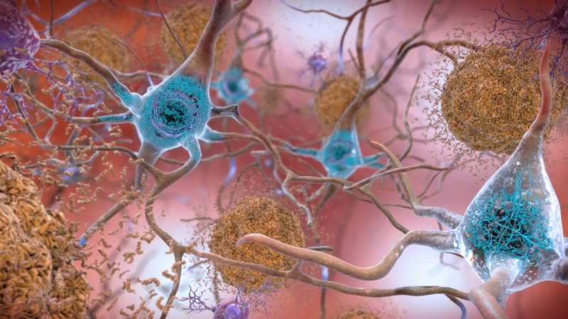 European scientists have made an intriguing discovery in Alzheimer's drug research https://t.co/u1IoSQlhSm