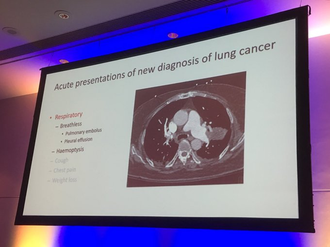 @rcpsglasgow #medicine24 one third of patients with lung cancer will present acutely to ED highlights Vidal Masani Foto