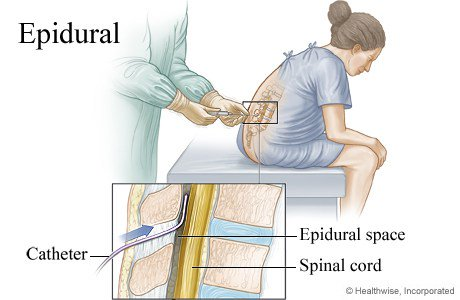 Image result for epidural