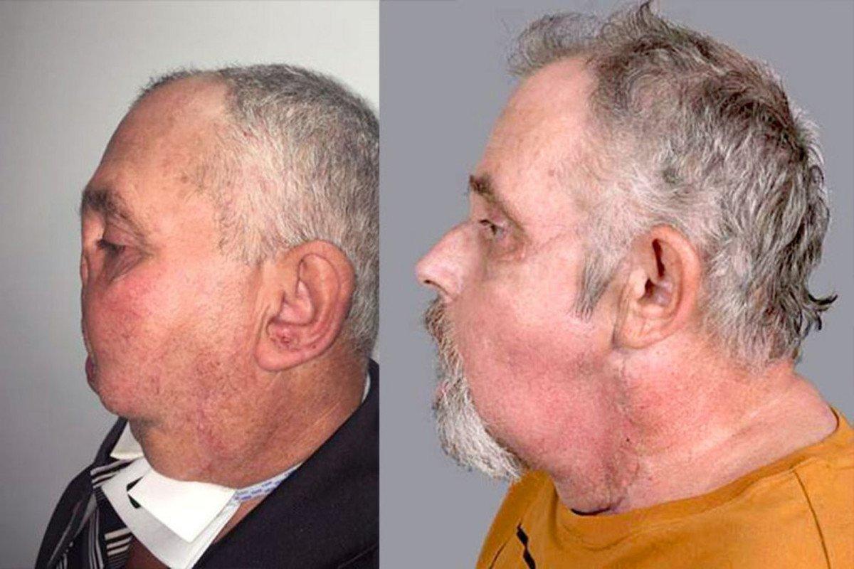 Pria 64 Tahun Jadi Penerima Transplantasi Wajah Tertua di Dunia