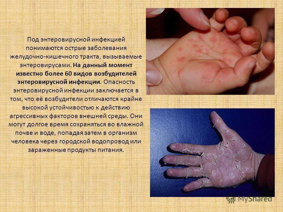 Энтеровирусная инфекция картинки фото
