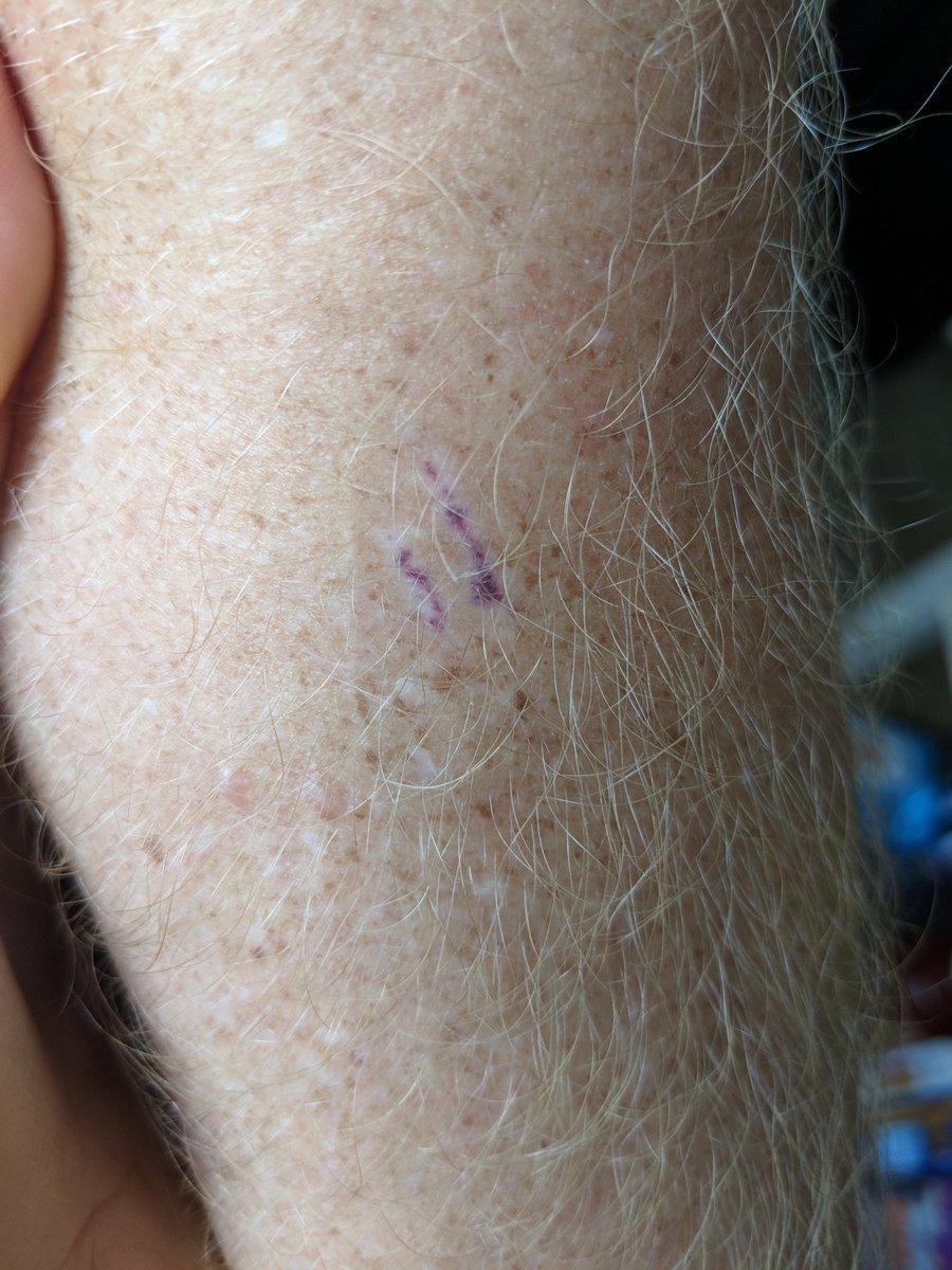 Scar my purple turn did why How big