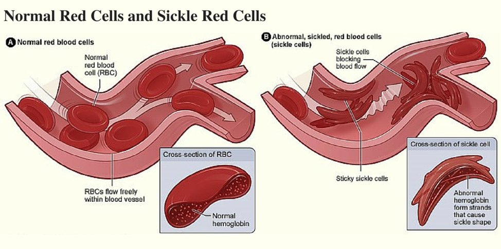 Red Blood Cell Cross Section Diagram Diy Enthusiasts Wiring Diagrams