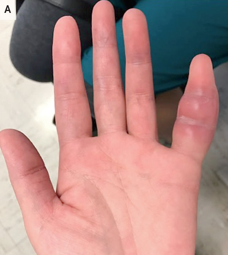 Nejm On Twitter Image Challenge A 42 Year Old Woman Presented With A 1 Week History Of Swelling And Pain In The Fifth Finger Of Her Left Hand She Reported No Related Trauma What S The