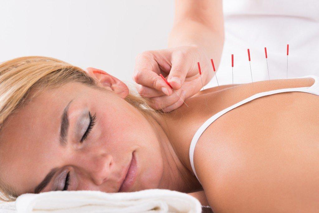 Иглоукалывание для похудения метод