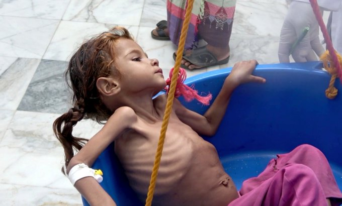UN agency warns time running out to prevent Yemen famine Photo