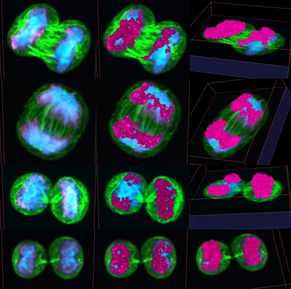 #StemCells divide more symmetrically as they age. Detailed study of paired daughter cells shows that asymmetry of hematopoietic stem cell division falls upon #aging; cellular & #epigenetic polarity help determine outcome of division #PLOSBiology plos.io/2PRIqfM