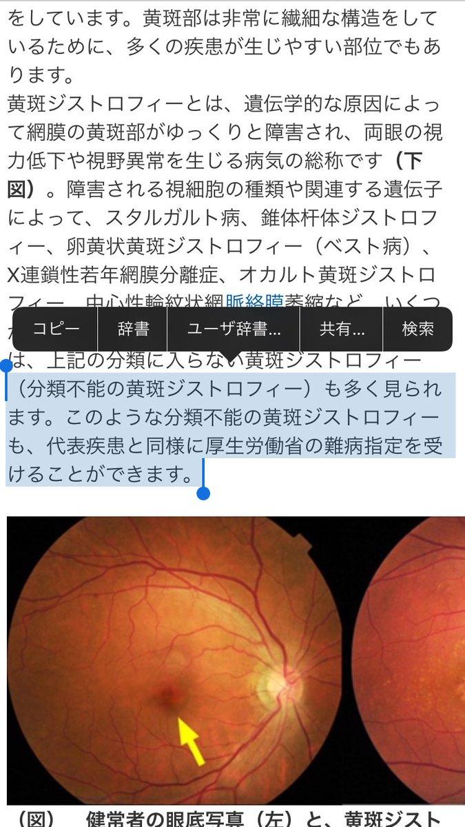 分離 症 網膜