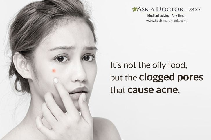 Largest Health Q&A site.  Ask a Doctor Online at      https://t.co/TwirbOpRi1   #oilyfood #acne#cloggedpores#AskADoctor#DailyHealthTips#HealthcareMagic