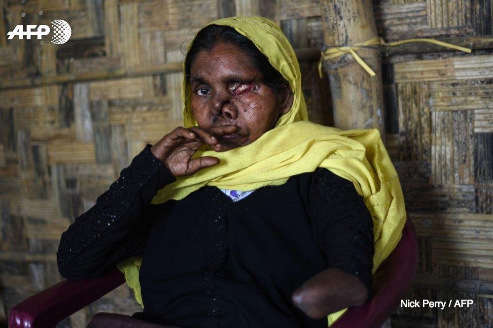 'Des viols. Des incendies. Et le massacre aveugle d'hommes, de femmes et d'enfants'  Comment rester neutre devant le drame des #Rohingyas ? @nickeperry, journaliste AFP pour l'Asie du Sud, s'interroge et livre sa colère https://t.co/2Kc6WcmYMH via @AFPMakingof #AFP