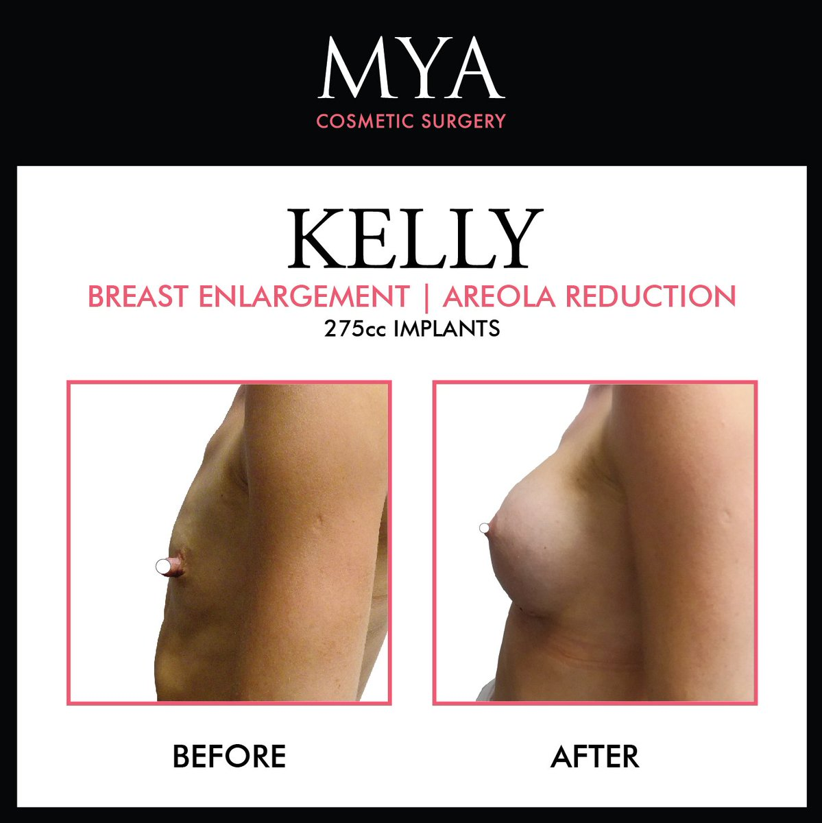 Male Breast Enlargement