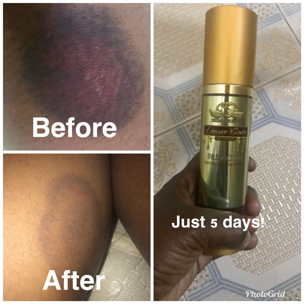 Had this 'ecchymosis' and I didn't want it to stop me from wearing my mini skirts... in just 5 days.... my scar has improved and it's almost faded! Liquid Gold is the deal! 😍😍😍😍...dm me for yours