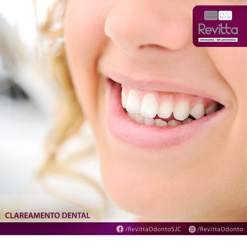Clareamentodental Hashtag On Twitter