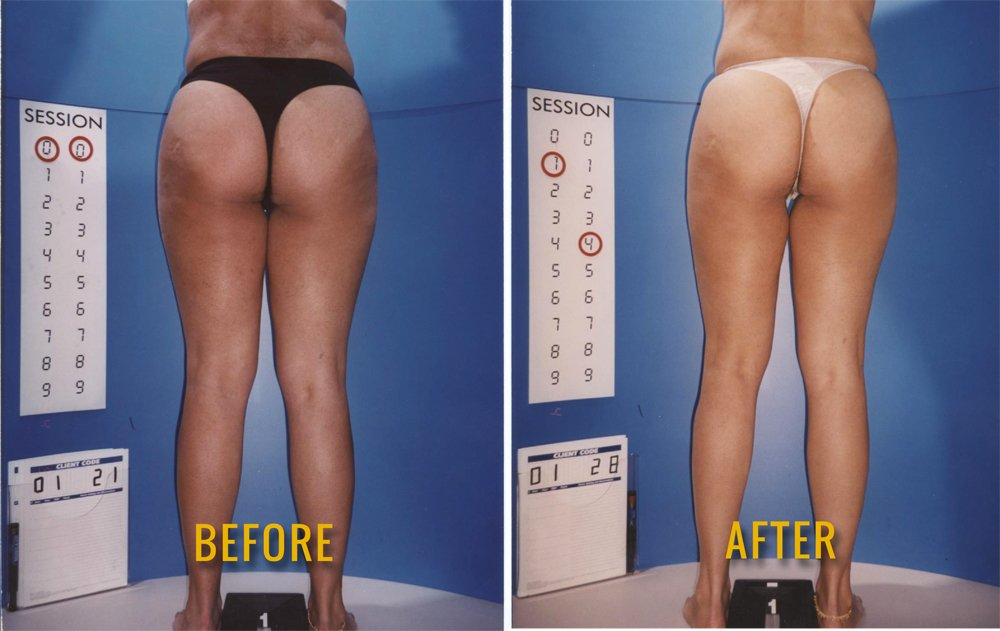 Cellulite Solutions On Twitter Just Image What Your After
