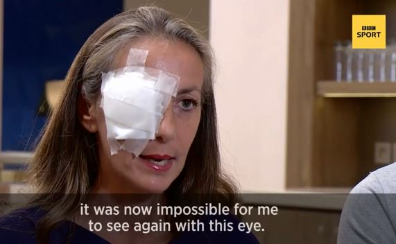 The #RyderCup spectator who was left blinded in one eye says she could have died.  More: https://bbc.in/2OxpztA