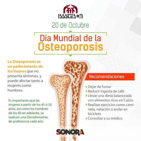 alimentos buenos para evitar la osteoporosis