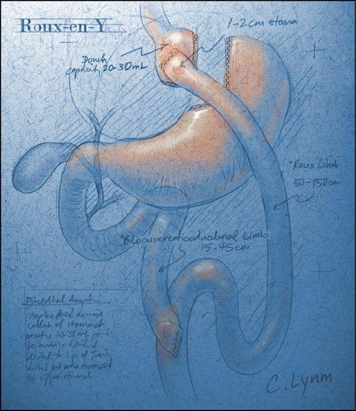 ebook ovarian pathology 1989