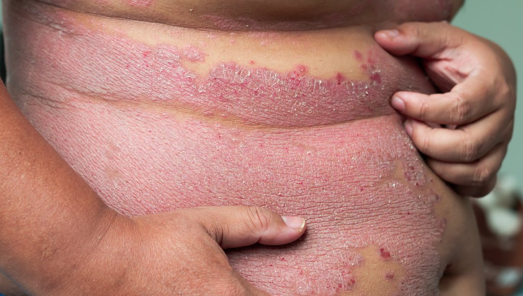 Dermatology Times على تويتر Dr Megan Noe M D Says The Most Consistent Study Findings Suggest That Psoriasis Patients Have An Increased Risk Of Non Melanoma Skin Cancer Read More About Skin Cancer Checks