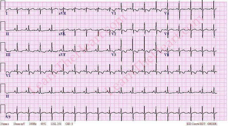 On Twitter Right Ventricular Hypertrophy ECG R