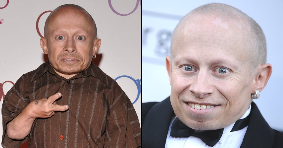 Verne Troyer&#39;s death confirmed as suicide from alcohol abuse.  http://www. ladbible.com/entertainment/ celebrity-verne-troyers-death-confirmed-as-suicide-20181010?c=1539198165561 &nbsp; … <br>http://pic.twitter.com/0D4mCmzWtp