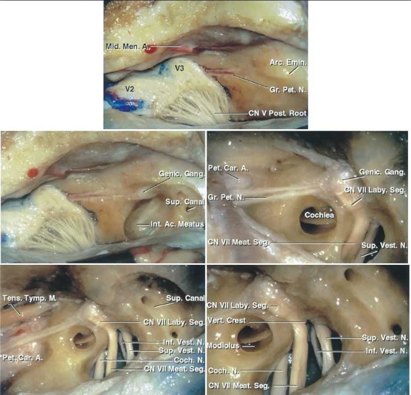 J Neurosurgery On Twitter Neurosurgicalatlas Anatomy For The