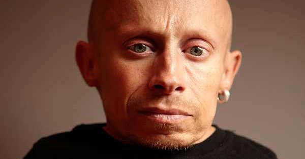 The cause of Verne Troyer&#39;s death is ruled as suicide by &quot;alcohol intoxication.&quot;  https:// eonli.ne/2CCk1II  &nbsp;  <br>http://pic.twitter.com/47vgCn5k6s