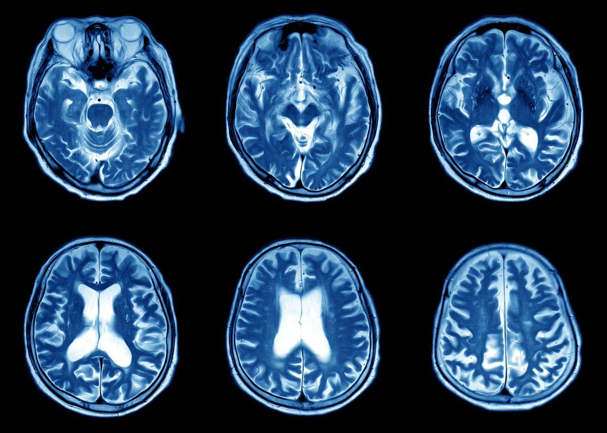 Компьютерная томография головы в картинках
