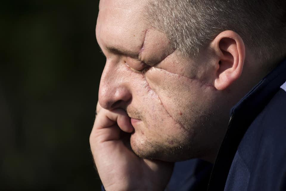 За час бойових дій на Донбасі загинуло 46 військових медиків, - Порошенко - Цензор.НЕТ 2210