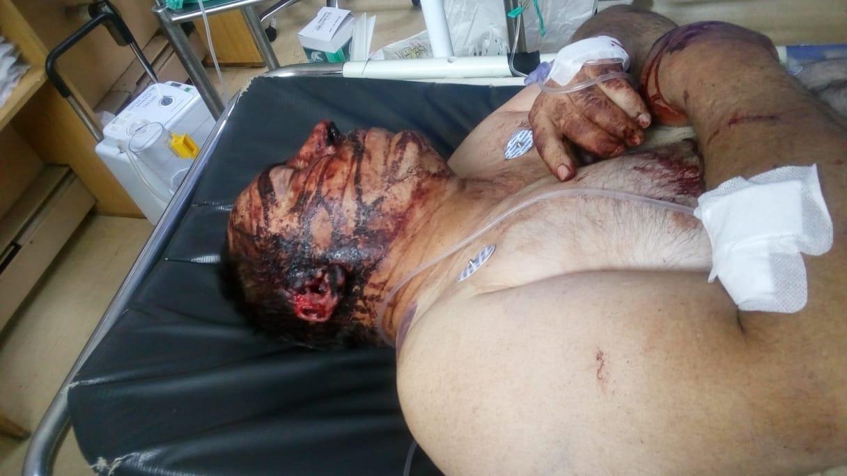 Moordorgie swart op wit woed voort/plaasmoorde en aanvalle DpQEYrSXoAEpfj5