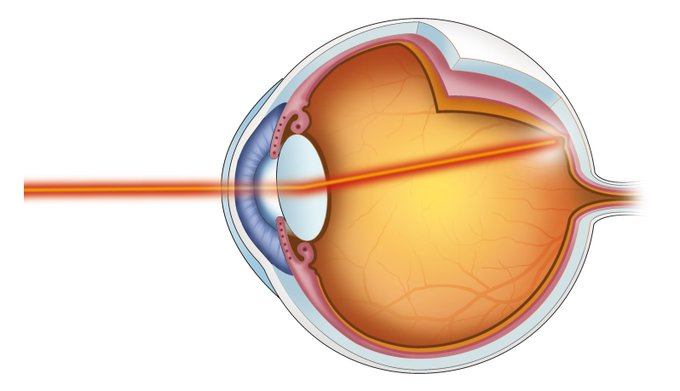Today is #WorldSightDay 👀 #DidYouKnow THIS is the leading cause of vision loss in the United States?! Photo