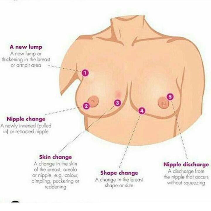 Breast Ultrasound