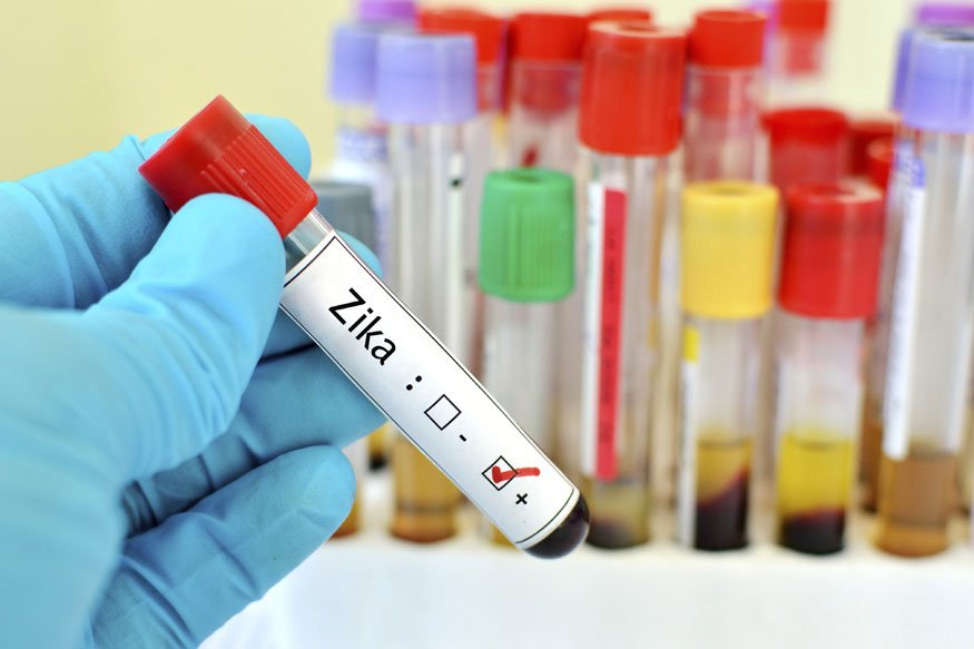 #Rajasthan steps up surveillance as number of #ZikaVirus cases rise to 55.