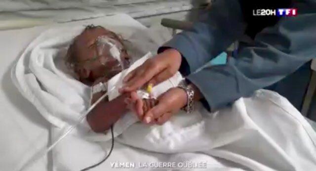 Rare reportage sur le Yémen de @PALLEMON sur @TF1LeJT qui montre qu'au delà des bombardements, les ravages de plus de trois ans de guerre sont aussi dus à l'effondrement de l'économie et du système de santé #YemenCantWait #PBCN2018 Photo