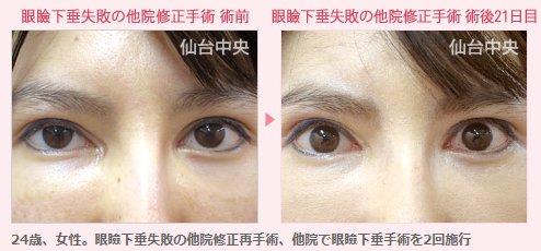 眼瞼下垂の術後2カ月目の早期に再手術しました。期間が開いてしまうと癒着が進むため、難易度が上がり、急いだほうが良い場合があります。