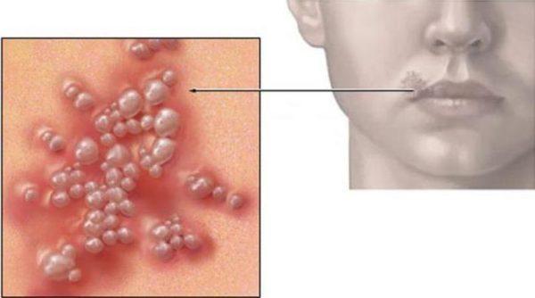 герпес на губах лечение солью