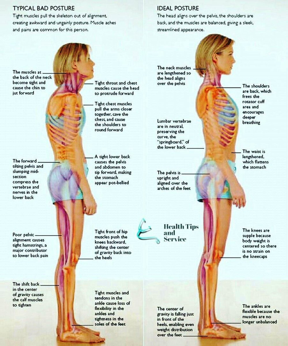 Kore Chiropractic Wellness On Twitter Typical Bad Posture