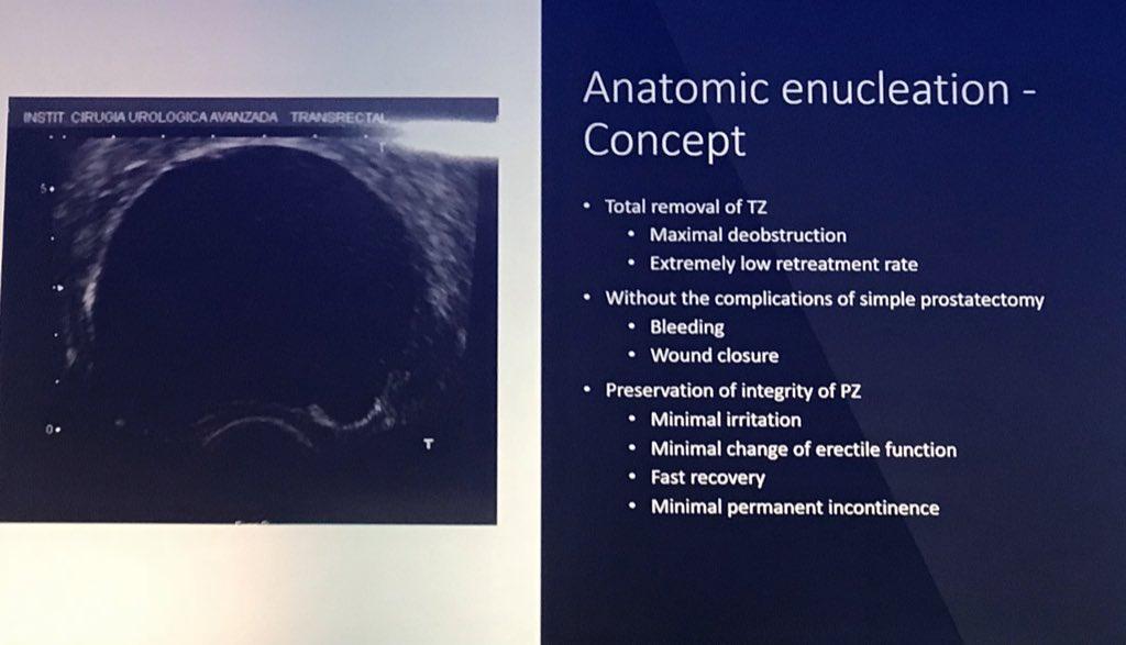 cirugía de próstata rerumal