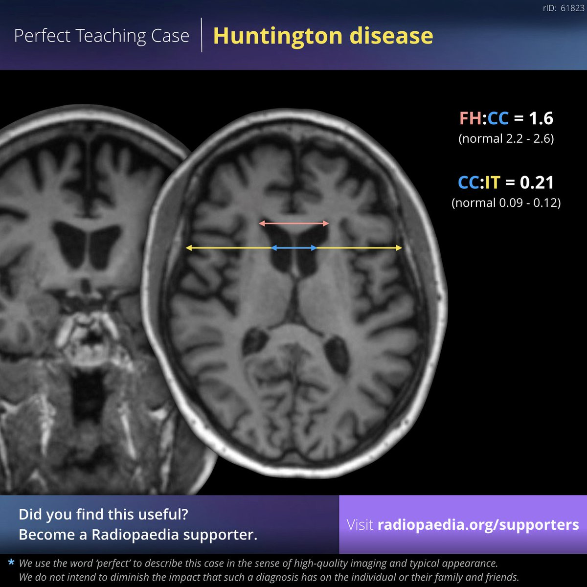 Frank Gaillard On Twitter Perfect Teaching Case Huntington Disease Mri View Case Https T Co Vibocxmos4 Become A Radiopaedia Supporter Https T Co Uoz1752oxy Supportradiopaedia Radiology Foamed Foamrad Neurorad Brain Neuropsychiatry