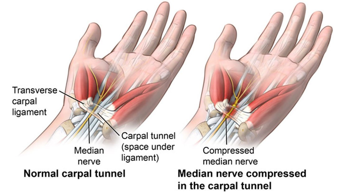 RT Physical Therapy for Carpal Tunnel Syndrome as Good as Surgery ➡ https://t.co/2iaYOfORRP https://t.co/6dalVCTreA #health #well
