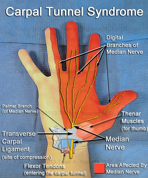carpal tunnel symptoms - 500×599