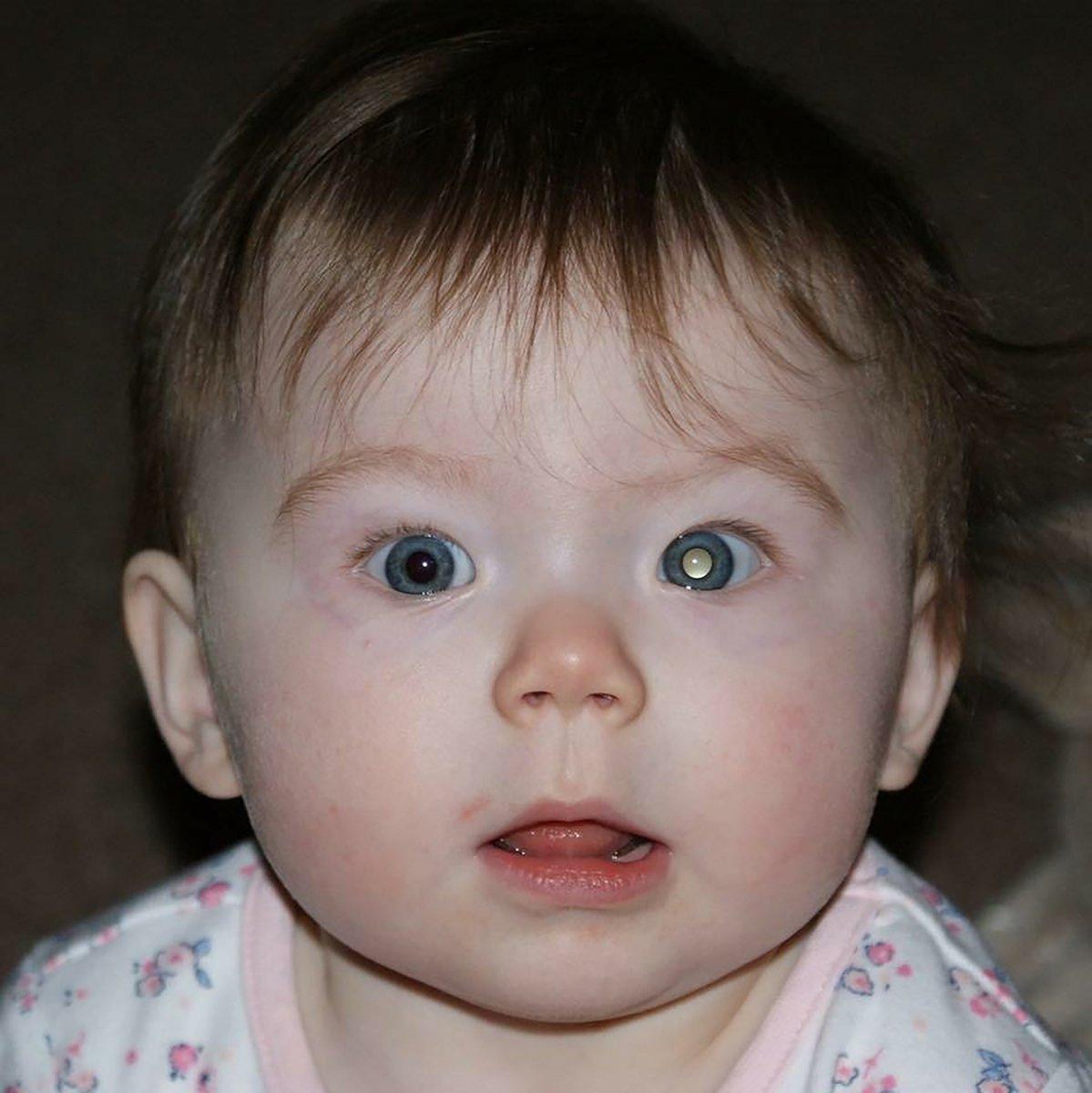 заявлений ретинобластома фото с вспышкой всего для