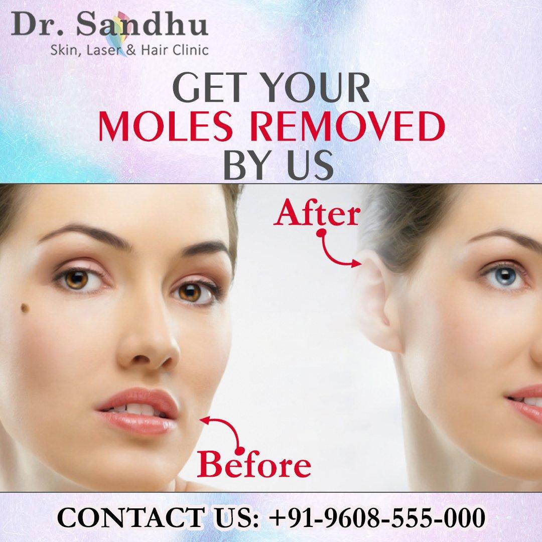 Dr  Sandhu on Twitter: