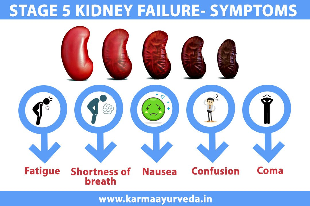 Kidney Treatment In Ayurveda On Twitter How Long Can You Live With Stage 5 Kidney Failure Without Dialysis View Https T Co Adrsznpf4w Ayurvedickidneytreatment Kidneydiseasetreatmentinayurveda Chronickidneydiseasetreatment
