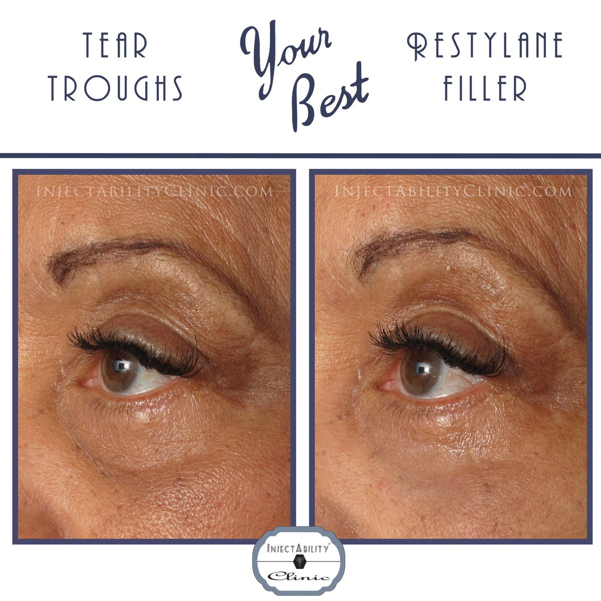 InjectAbility Beauty on Twitter: