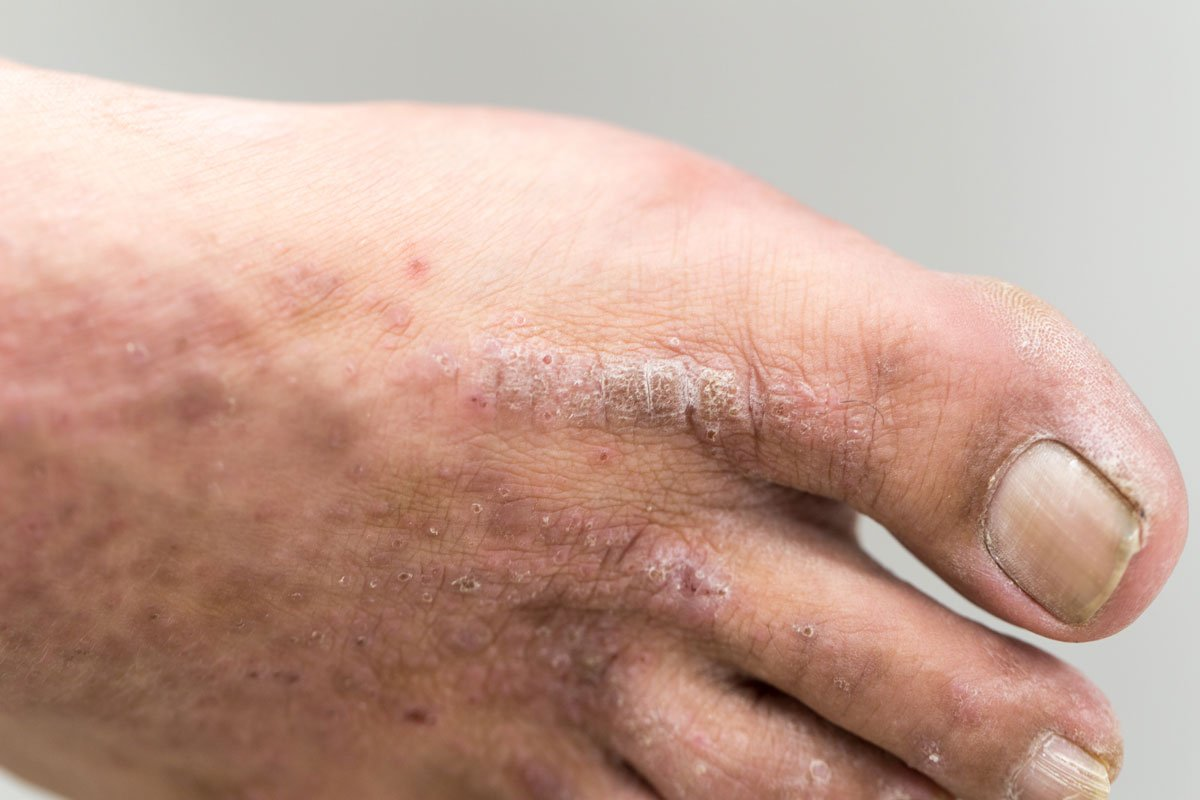 1 guidance atopic eczema in under 12s diagnosis and - HD1200×800
