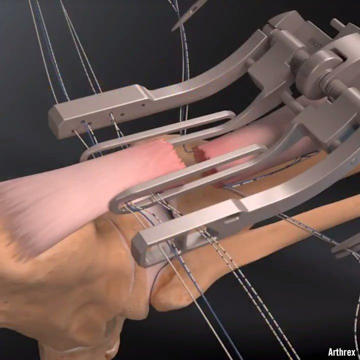3D animation shows the repairing of an Achilles tendon via @arthrex https://t.co/iqLtCSAMJ1