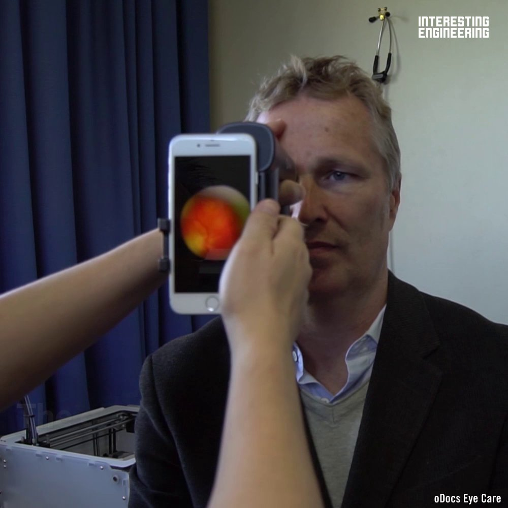 This ophthalmoscope pairs with a users smartphone to deliver accurate eye exams #HealthTech #Technology #AI