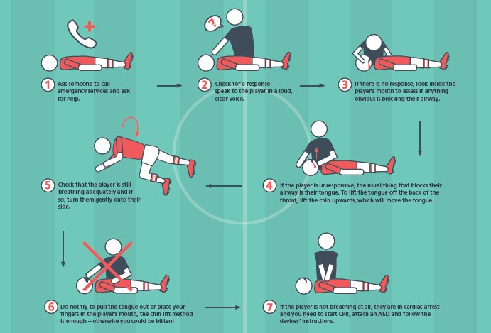 ⛑️ What to do when a players tongue obstructs their airway, by @FIFAMedical ⚽️ Playing football this weekend? Please, take a minute and have a closer look at this, as it could save someones life! Download the full poster to use at your club 👇 fifa.to/nLAoD1EYHR